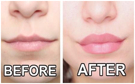 Best Ways On How To Make Your Lips Smaller